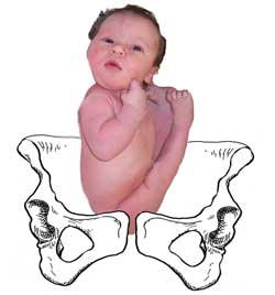 breech bebê pelvico